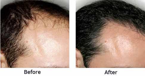 Hair Transplant Clinics in KolkataServicesHealth - FitnessAll IndiaNew Delhi Railway Station