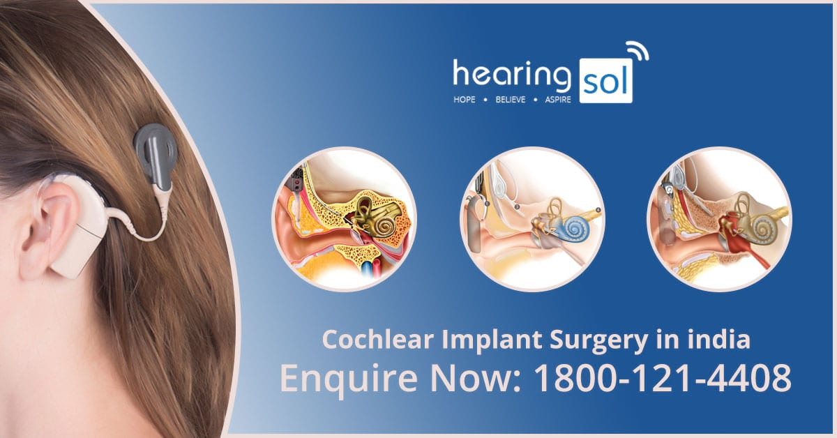 Best Cochlear Implant Surgery Center in DelhiHealth and BeautyHospitalsNorth DelhiPitampura